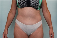 Tummy Tuck After Photo by Joseph O'Connell, MD; Westport, CT - Case 31014