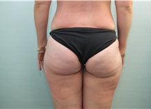 Liposuction Before Photo by Joseph O'Connell, MD; Westport, CT - Case 31016