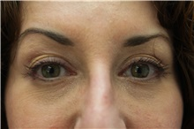 Dermal Fillers After Photo by Joseph O'Connell, MD; Westport, CT - Case 31020
