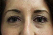 Dermal Fillers Before Photo by Joseph O'Connell, MD; Westport, CT - Case 31020