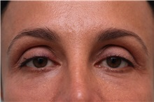 Eyelid Surgery After Photo by Joseph O'Connell, MD; Westport, CT - Case 31022