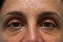 Eyelid Surgery Before Photo by Joseph O'Connell, MD; Westport, CT - Case 31022