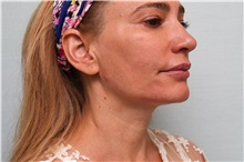 Botulinum Toxin After Photo by Joseph O'Connell, MD; Westport, CT - Case 31023