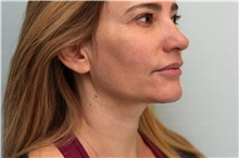 Botulinum Toxin Before Photo by Joseph O'Connell, MD; Westport, CT - Case 31023