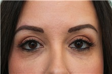 Eyelid Surgery After Photo by Joseph O'Connell, MD; Westport, CT - Case 31028