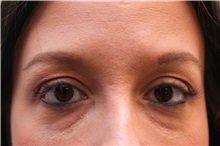 Eyelid Surgery Before Photo by Joseph O'Connell, MD; Westport, CT - Case 31028