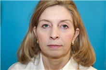 Facelift Before Photo by Joseph O'Connell, MD; Westport, CT - Case 31029