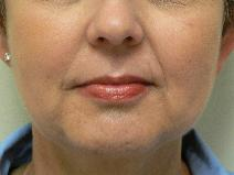 Dermal Fillers After Photo by Daniel Casso, MD; Nassau Bay, TX - Case 8009