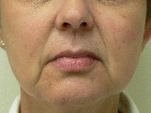 Dermal Fillers Before Photo by Daniel Casso, MD; Nassau Bay, TX - Case 8009