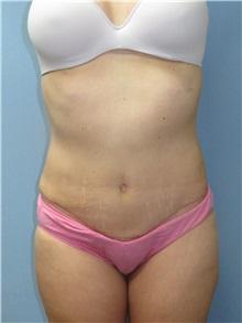 Tummy Tuck After Photo by Howard Heppe, MD; Fredericksburg, VA - Case 33103