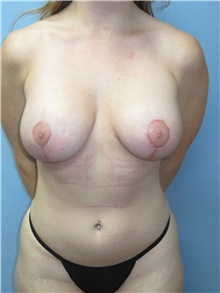 Breast Lift After Photo by Howard Heppe, MD; Fredericksburg, VA - Case 35408