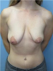 Breast Lift Before Photo by Howard Heppe, MD; Fredericksburg, VA - Case 35408