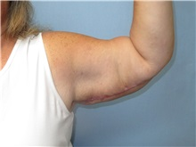 Arm Lift After Photo by Howard Heppe, MD; Fredericksburg, VA - Case 35409