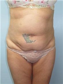 Tummy Tuck Before Photo by Howard Heppe, MD; Fredericksburg, VA - Case 35412