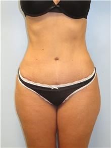 Tummy Tuck After Photo by Howard Heppe, MD; Fredericksburg, VA - Case 41326