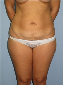 Tummy Tuck Before Photo by Howard Heppe, MD; Fredericksburg, VA - Case 41326