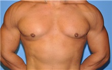 Male Breast Reduction After Photo by Robert Wilcox, MD; Plano, TX - Case 30105