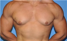 Male Breast Reduction Before Photo by Robert Wilcox, MD; Plano, TX - Case 30105