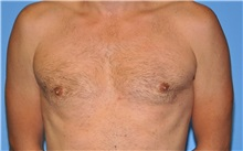 Male Breast Reduction After Photo by Robert Wilcox, MD; Plano, TX - Case 30106