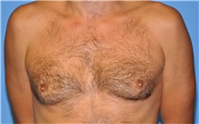 Male Breast Reduction Before Photo by Robert Wilcox, MD; Plano, TX - Case 30106
