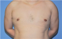 Male Breast Reduction After Photo by Robert Wilcox, MD; Plano, TX - Case 30107