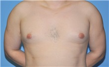 Male Breast Reduction Before Photo by Robert Wilcox, MD; Plano, TX - Case 30107