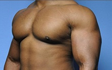 Male Breast Reduction After Photo by Robert Wilcox, MD; Plano, TX - Case 30117
