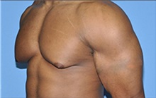 Male Breast Reduction Before Photo by Robert Wilcox, MD; Plano, TX - Case 30117
