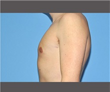 Male Breast Reduction After Photo by Robert Wilcox, MD; Plano, TX - Case 30118