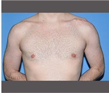 Male Breast Reduction After Photo by Robert Wilcox, MD; Plano, TX - Case 30119