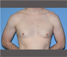 Male Breast Reduction Before Photo by Robert Wilcox, MD; Plano, TX - Case 30119