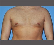 Male Breast Reduction After Photo by Robert Wilcox, MD; Plano, TX - Case 30120