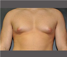 Male Breast Reduction Before Photo by Robert Wilcox, MD; Plano, TX - Case 30120