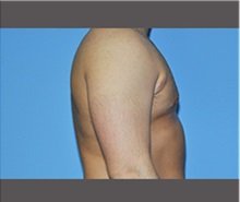 Male Breast Reduction After Photo by Robert Wilcox, MD; Plano, TX - Case 30121