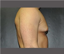 Male Breast Reduction Before Photo by Robert Wilcox, MD; Plano, TX - Case 30121