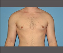 Male Breast Reduction After Photo by Robert Wilcox, MD; Plano, TX - Case 30122