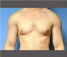 Male Breast Reduction Before Photo by Robert Wilcox, MD; Plano, TX - Case 30122