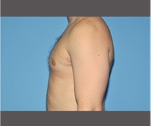 Male Breast Reduction After Photo by Robert Wilcox, MD; Plano, TX - Case 30124