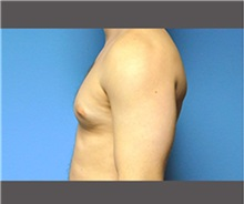 Male Breast Reduction Before Photo by Robert Wilcox, MD; Plano, TX - Case 30124