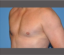 Male Breast Reduction After Photo by Robert Wilcox, MD; Plano, TX - Case 30126