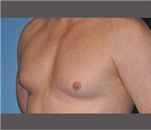 Male Breast Reduction Before Photo by Robert Wilcox, MD; Plano, TX - Case 30126