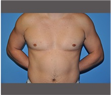 Male Breast Reduction After Photo by Robert Wilcox, MD; Plano, TX - Case 30128
