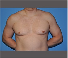 Male Breast Reduction Before Photo by Robert Wilcox, MD; Plano, TX - Case 30128