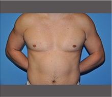 Male Breast Reduction After Photo by Robert Wilcox, MD; Plano, TX - Case 30129