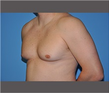 Male Breast Reduction Before Photo by Robert Wilcox, MD; Plano, TX - Case 30129