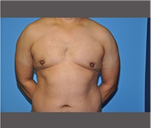 Male Breast Reduction After Photo by Robert Wilcox, MD; Plano, TX - Case 30130