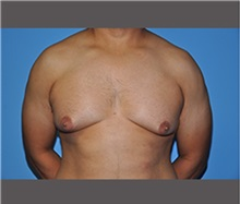 Male Breast Reduction Before Photo by Robert Wilcox, MD; Plano, TX - Case 30130