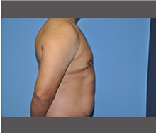 Male Breast Reduction After Photo by Robert Wilcox, MD; Plano, TX - Case 30131