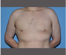 Male Breast Reduction After Photo by Robert Wilcox, MD; Plano, TX - Case 30132