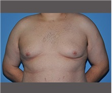 Male Breast Reduction Before Photo by Robert Wilcox, MD; Plano, TX - Case 30132